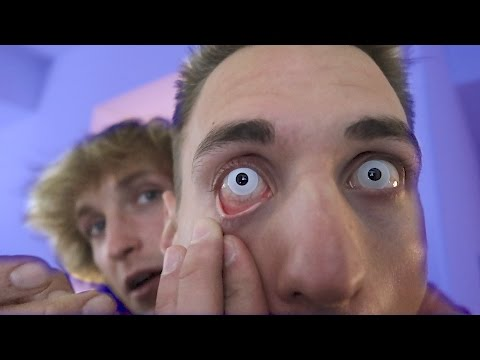 Thumbnail: IT GOT STUCK IN HIS EYE!