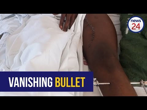 Community assaults criminal after police shoot the wrong person, allegedly remove bullet