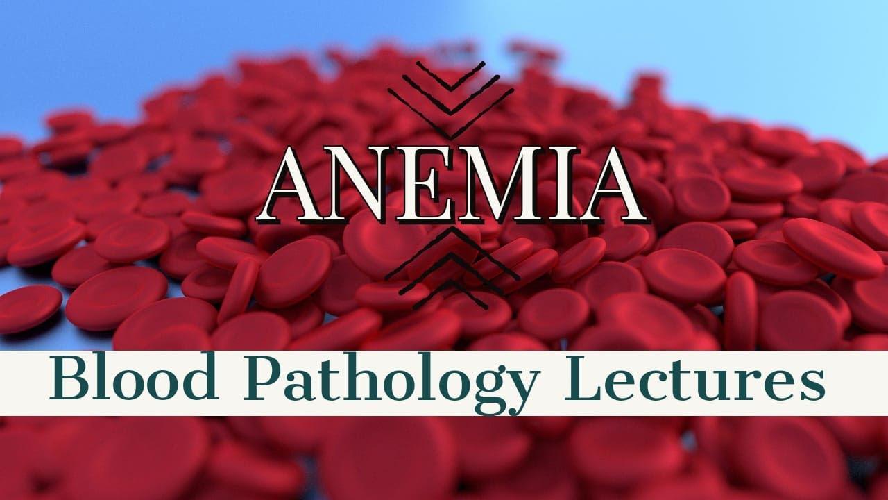 anemia 3 stopnia)