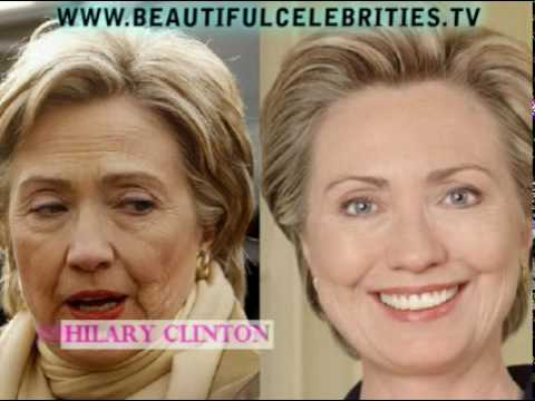 Beautiful Celebrities Who Have Had Facelifts Before And