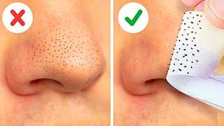24個快速除黑頭粉刺簡易方法|| 面膜,天然美容小撇步