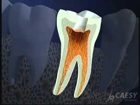 Quy trình điều trị tuỷ răng - BS Phong