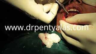 Lip Reduction Surgery Thumbnail