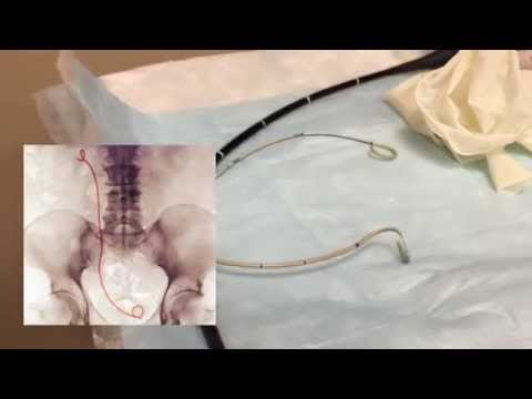 Graphic - Renal Stent Removal - YouTube