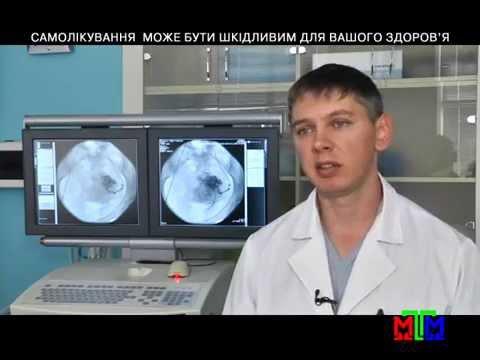 Лечение миомы матки методом - ЭМА.