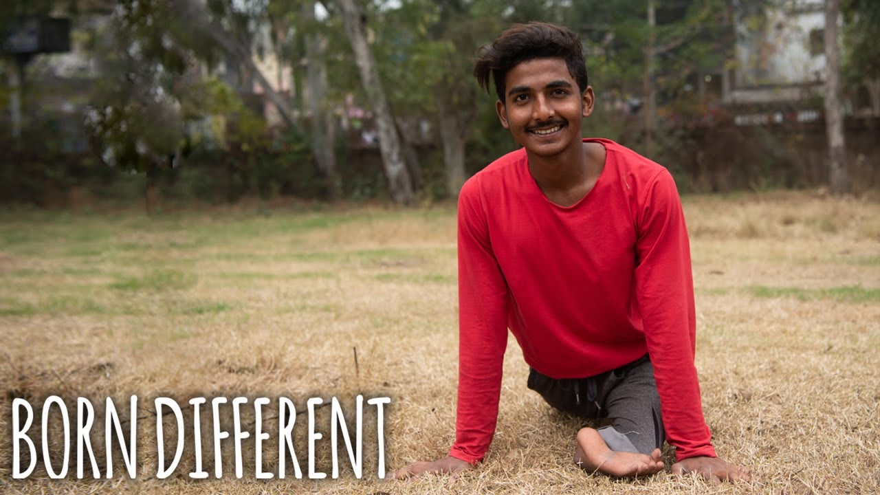 My Foot Acts As My Knee - And Nobody Knows Why | BORN DIFFERENT