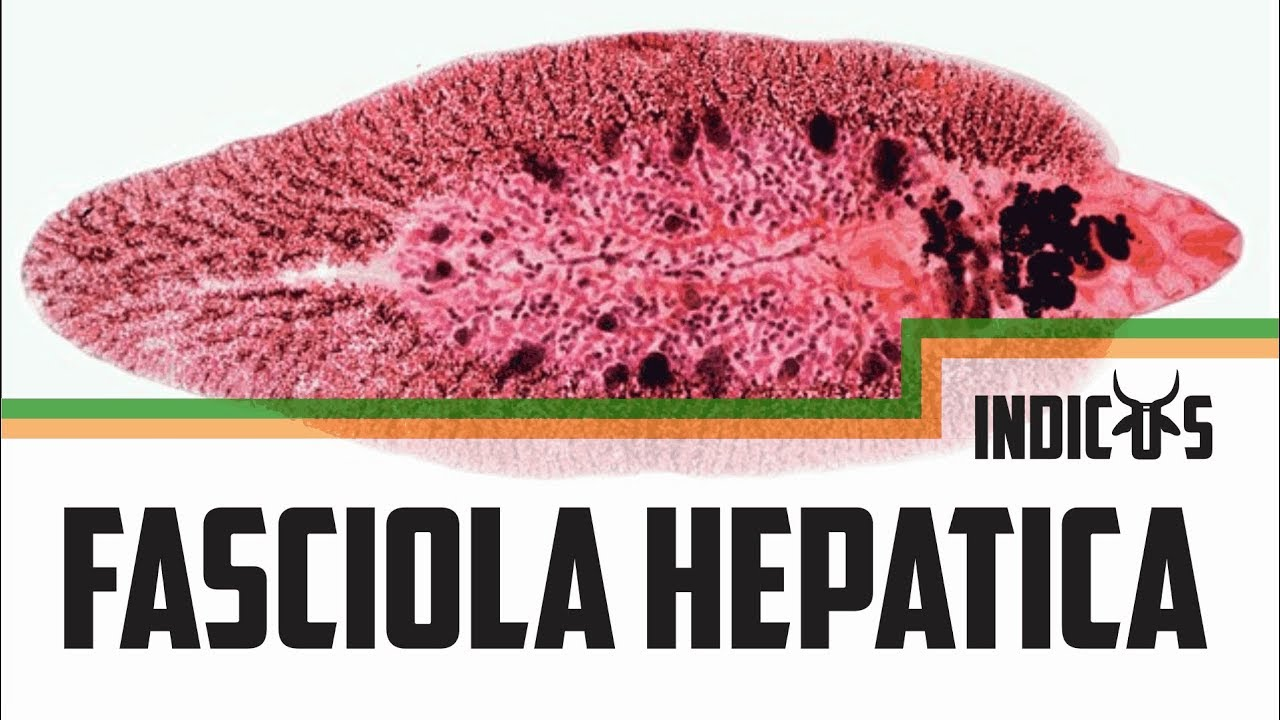 Fascioliasis fórum, Fascioliasis betegség okozta, Élelmiszer-higiénia