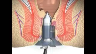 solusi pengobatan wasir tanpa operasi