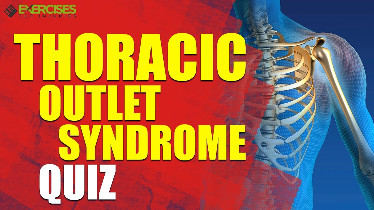 Thoracic Outlet Syndrome Quiz - YouTube