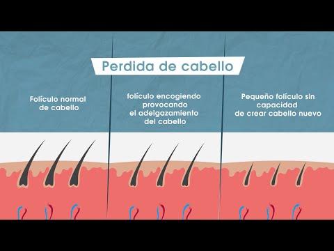 Caída del cabello + Alopecia + Soluciones + Minoxidil + Caída de Cabello en Mujeres