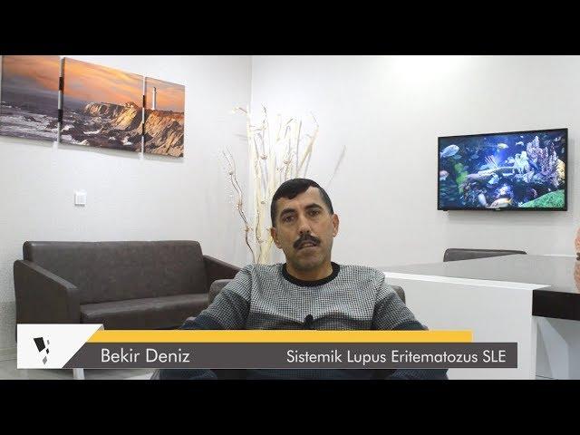 SİSTEMİK LUPUS SLE - Onlar Sağlığına Kavuşuyor - Dr. Ceyhun Nuri – Bekir Deniz