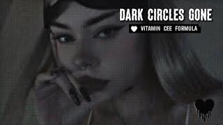 Get Rid of Dark Circles ll Subliminal
