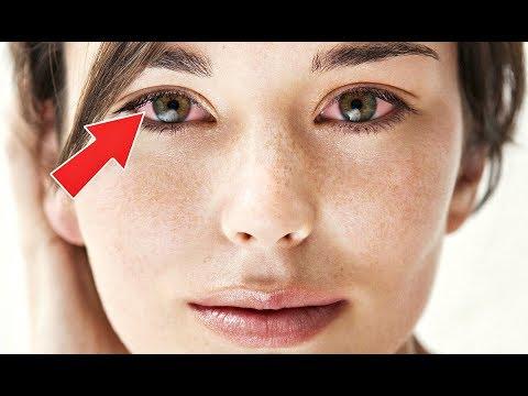 Почему чешутся глаза? Чешутся глаза что делать? Причины по которым могут чесаться глаза?
