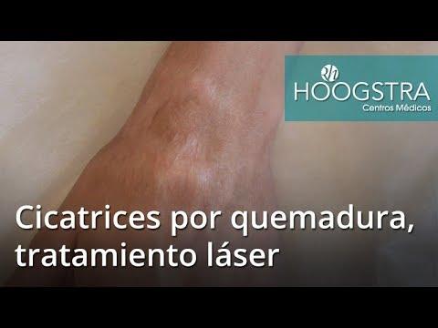 Cicatrices por quemadura, tratamiento láser (17036)