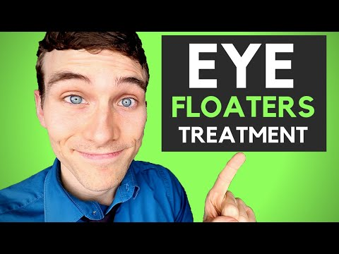🔴How to Get Rid of Eye Floaters - 3 Eye Floaters Treatments