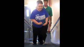 Ascending/Descending stairs with arthrogryposis w/o using a railing