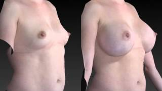 Breast Enhancement 3D Before and After-51