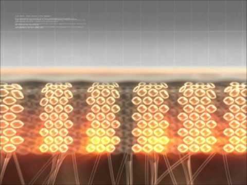 How microneedling works.wmv