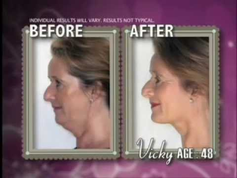Neckline Slimmer - AS SEEN ON TV - Define Jawline