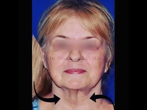#WipeItDown with Neck & Face Lift Patient #2!