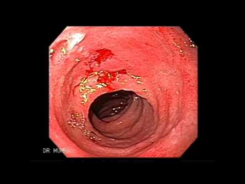 Endoscopy of Celiac Disease
