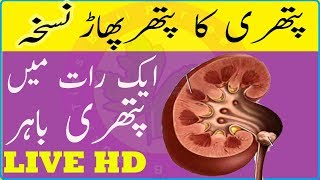Stone In Kidney Home Treatment - Say Goodbye To Your Kidney Stones - Kidney Stone Fast Treatment