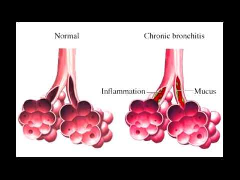 """Chronic Bronchitis - """"blue bloater"""""""