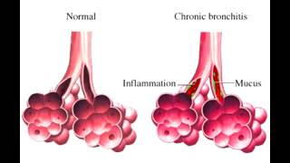 "Chronic Bronchitis - ""blue bloater"""