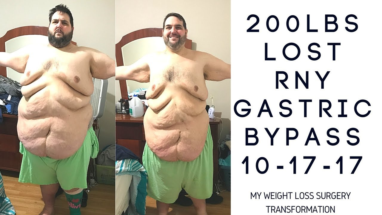 My 200lb Weight Loss Surgery Transformation