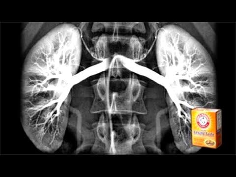 How to Repair Your Kidneys Naturally Using Baking Soda!
