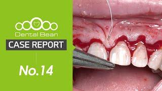 [ENG] Upper anterior esthetic CLP with bone reduction and alveolar plasty [#Dentalbean]