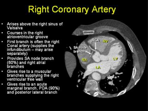 Coronary Arterial Anatomy Youtube