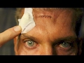 THE RESURRECTION DAY 8 - SURGERY - SKIN CANCER REMOVED - SMOKEHOUSE BBQ - MOVIES