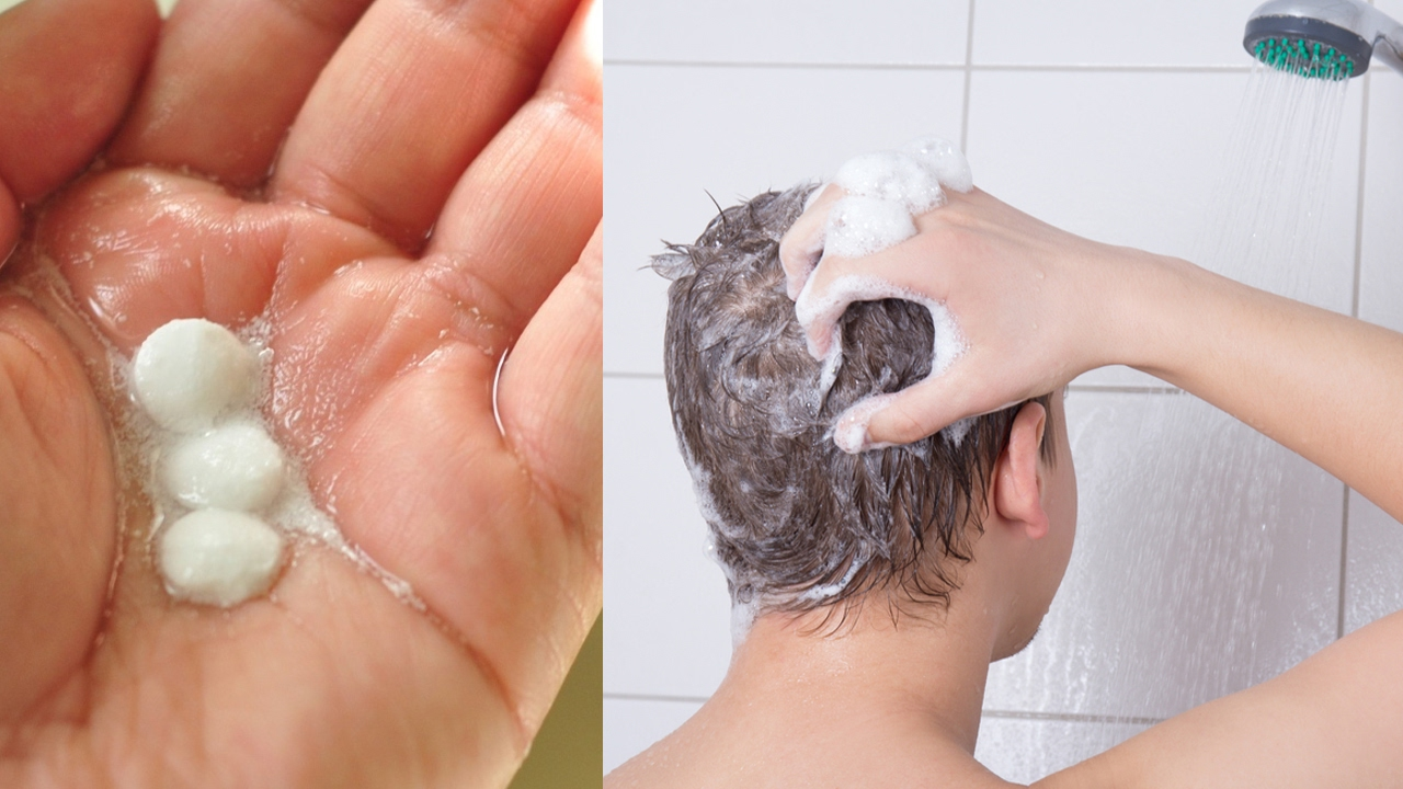 how to stop dandruff naturally