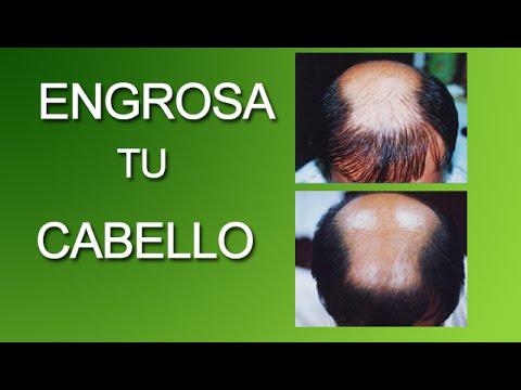 Vitamina para el cabello - 3 2