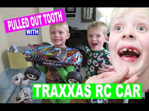 KID PULLS HIS TOOTH OUT WITH TRAXXAS RC CAR!
