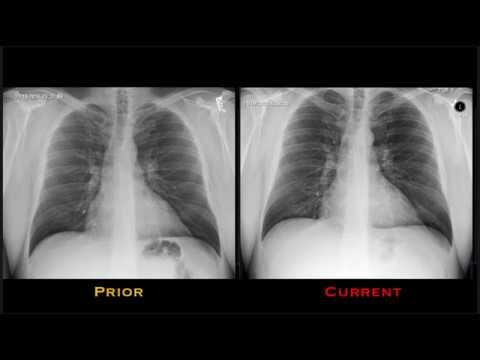 Pneumonia Explained by Prometheus Lionhart