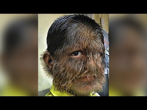 WEREWOLF BOY FROM INDIA - BOY WITH HAIRIEST FACE AND BODY