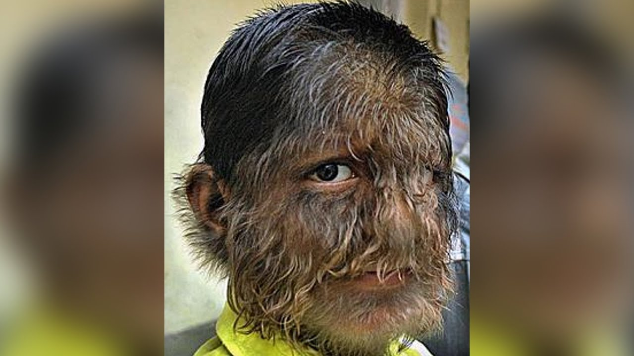 Werewolf Boy From India Boy With Hairiest Face And Body Youtube