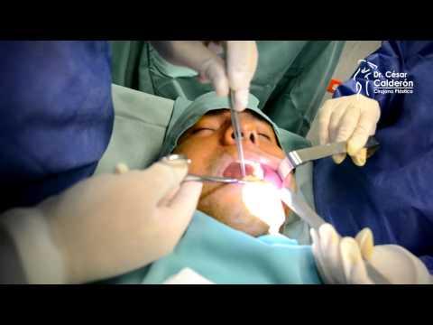 Liposuction papada antes y despues de adelgazar
