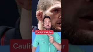 Cauliflower Ear 👂🏼 #shorts