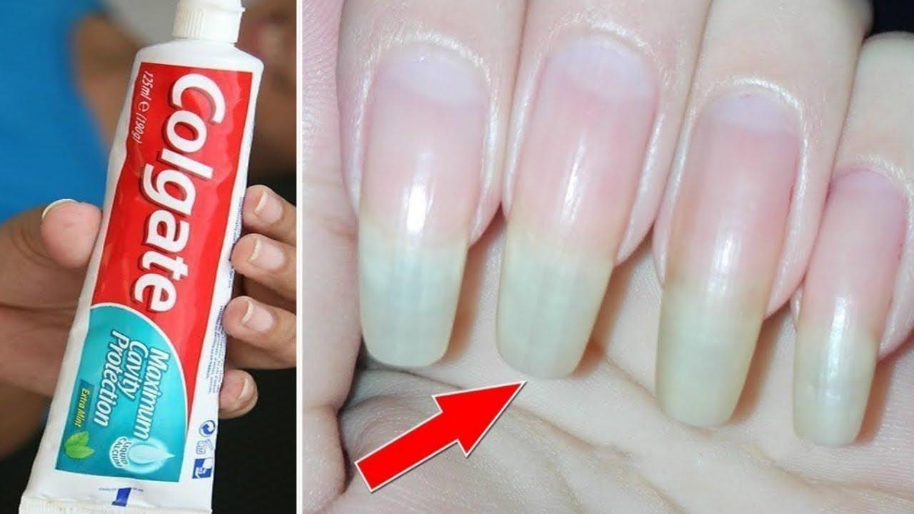 नाखूनों को लम्बे मजबूत करने का रामबाण उपाय / 5 Tips Long Healthy Nails