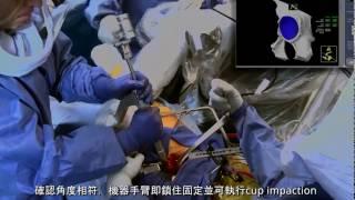 MAKO Total Hip全人工髖關節置換,機器人手臂關節置換手術影片 | MAKOplasty® TW