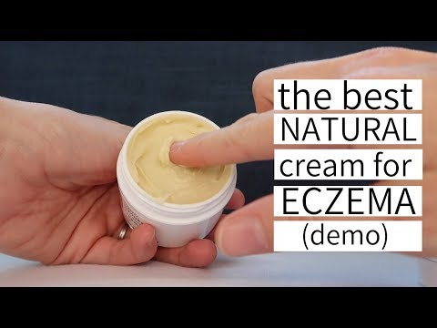 The Best Natural Cream for Eczema – YoRo Naturals Organic Manuka Honey Cream for Eczema