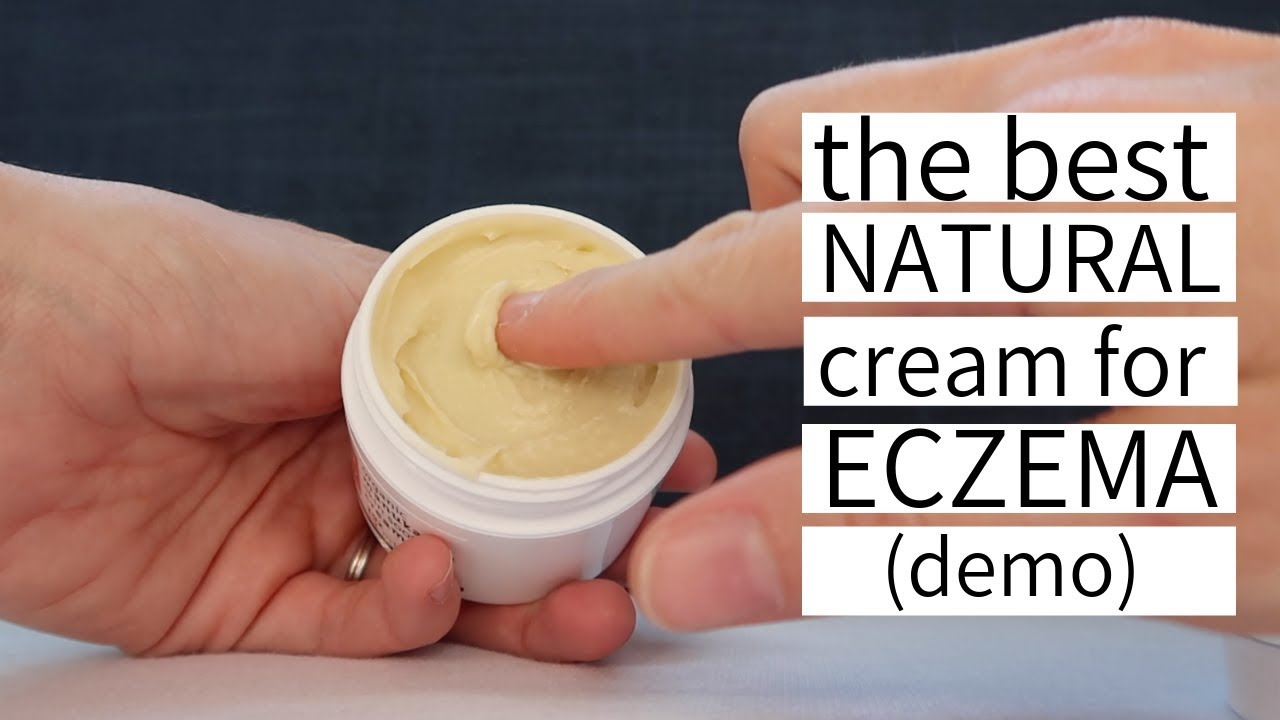 The Best Natural Cream for Eczema - YoRo Naturals Organic Manuka Honey Cream for Eczema