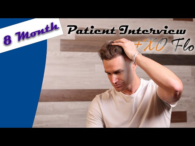Hair Transplant Results - 12 Month Patient Interview with Bobby Dunlap