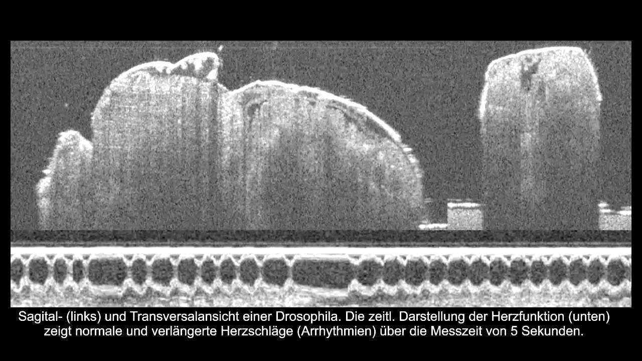 Optische Kohärenztomografie (OCT) der Herzfunktion an Drosophila ...