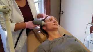 Claire RF Microneedling at Renove Med Spa