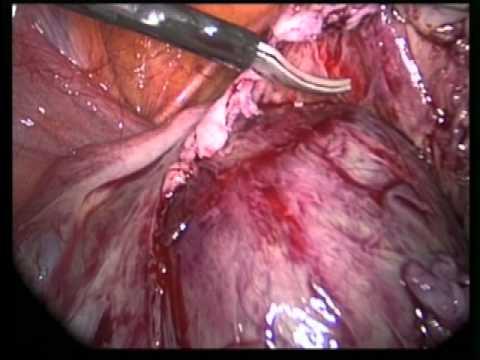 Endometriosis ovarica. Dr Luis Fernando Escobar Po...