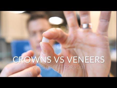 CROWNS VS VENEERS - Which is best?